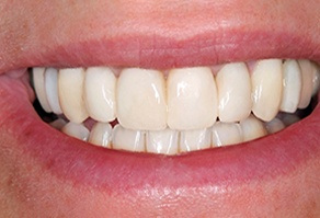 Beautiful healthy smile after restorative dentistry treatment