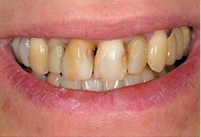 Yellowed and decayed teeth before restorative dentistry treatment