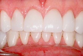 Whole healthy smile after dental treatment