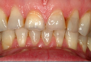 Discolored and worn teeth before dental treatment