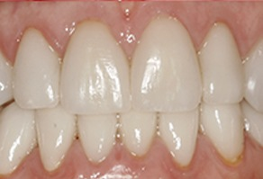 Healthy attractive smile after cosmetic dentistry