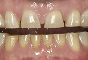 Severely worn teeth before treatment