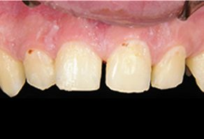 Severe dental decay discoloration and unevenly spaced smile