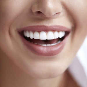 Close-up of beautiful smile with porcelain veneers in Northborough