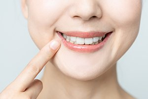 Woman pointing to healthy smile after periodontal therapy
